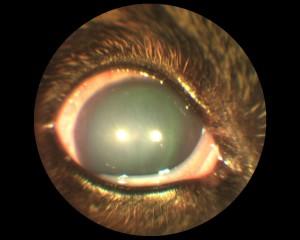 Рисунок 3. Глаукома
