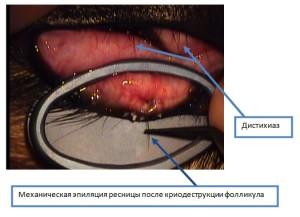 Рисунок 5. Механическая эпиляция после криодеструкции