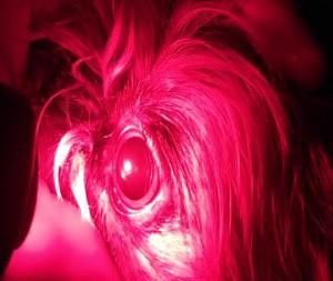 Рисунок 5. Отсутствие сужения зрачка на красный при патологии фоторецепторов