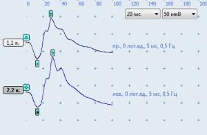 Рисунок 14. Графики ЭРГ у клинически здоровой кошки