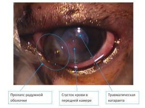 Рисунок 2. Травма роговицы кошачьим когтем, травматическая катаракта